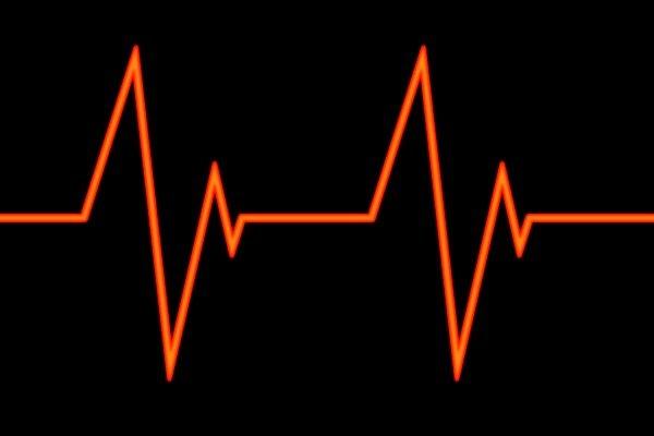 Koji je vaš idealan broj otkucaja srca?