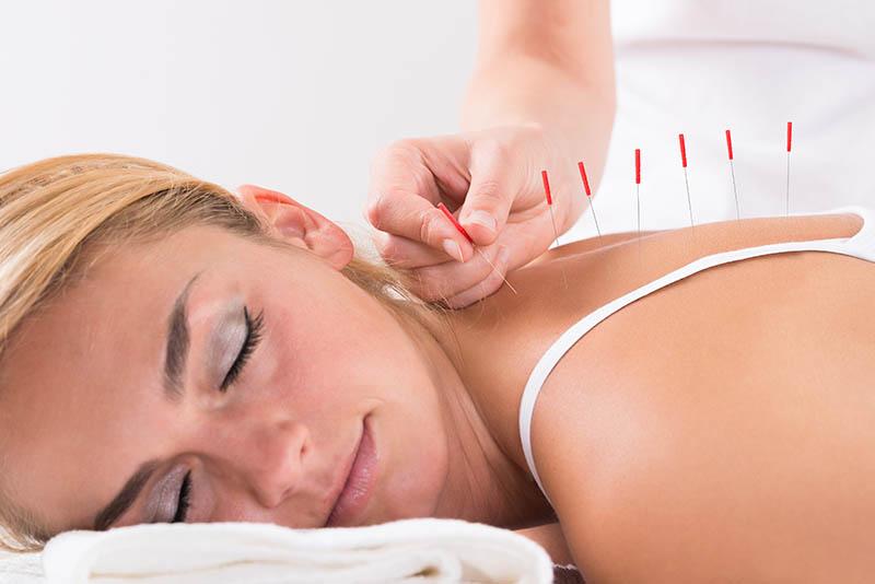 Akupunktura pomaže u liječenju kronične boli