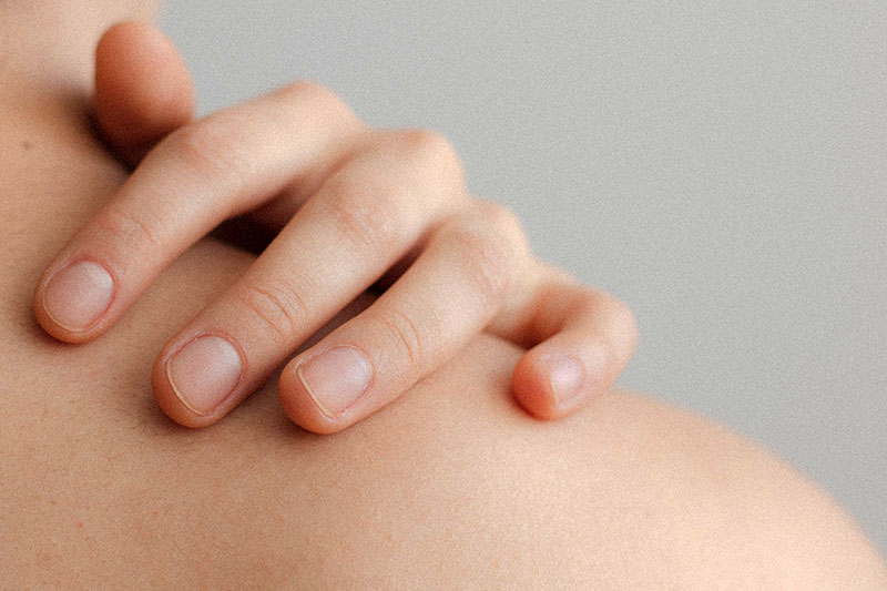 Psorijaza: 7 okidača koji dovode do pogoršanja simptoma