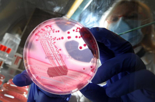 Enterohemoragijska E. coli