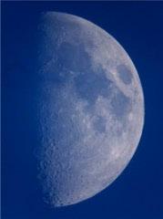 Melanom nije uvijek crn i nije samo Sunce krivo- komentira Luna13